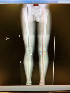 long leg x-ray