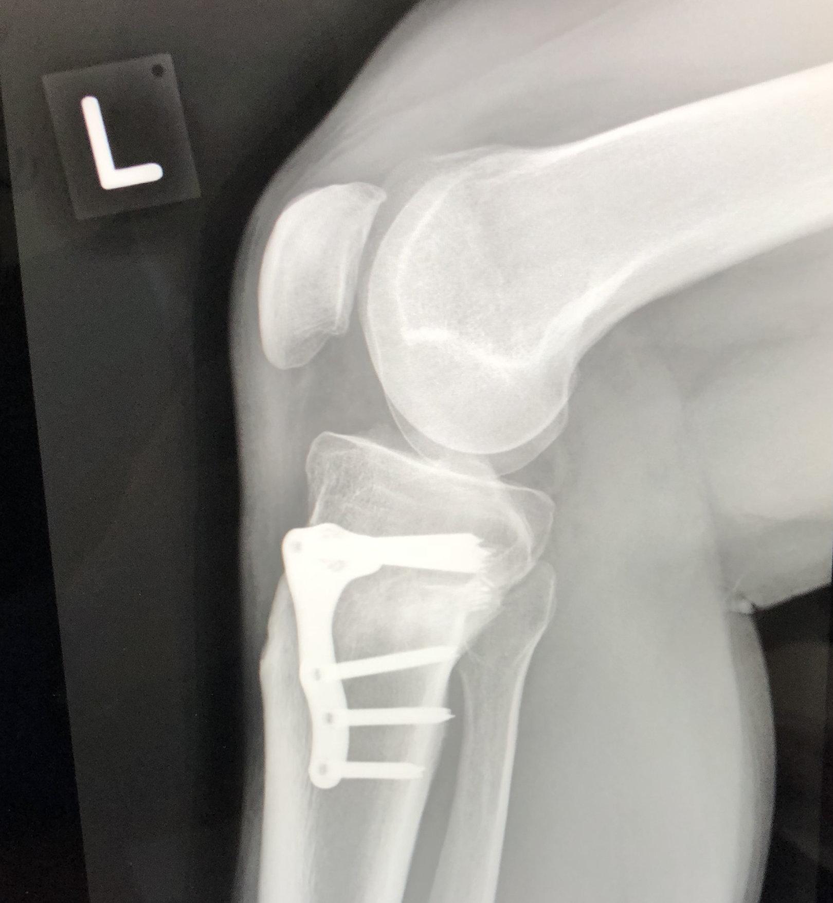 high tibial osteotomy