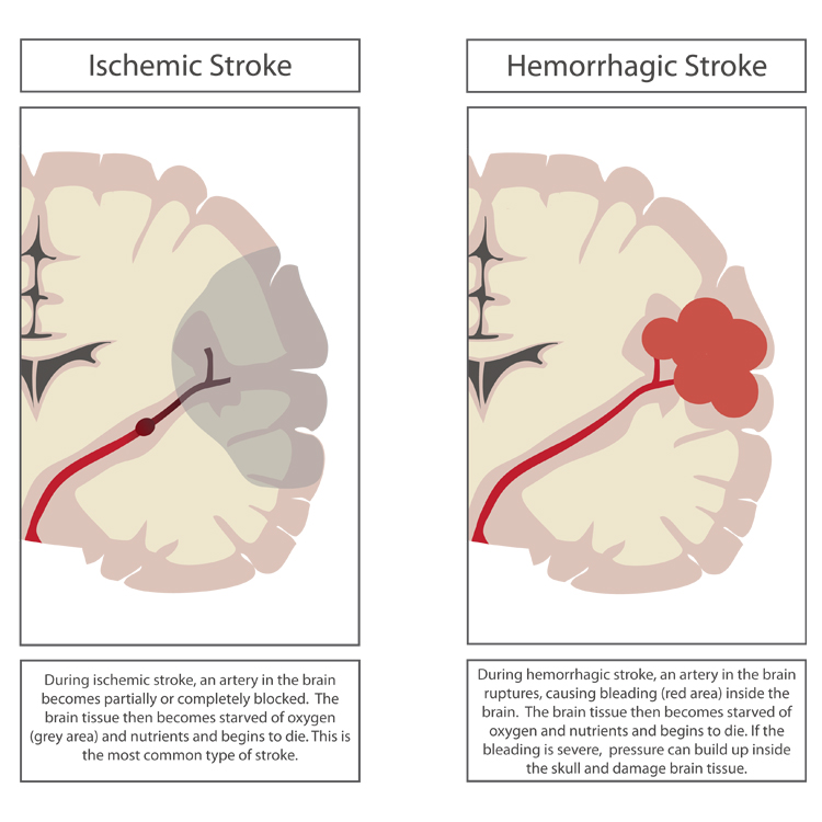Stroke Graphic by Knowing Neurons