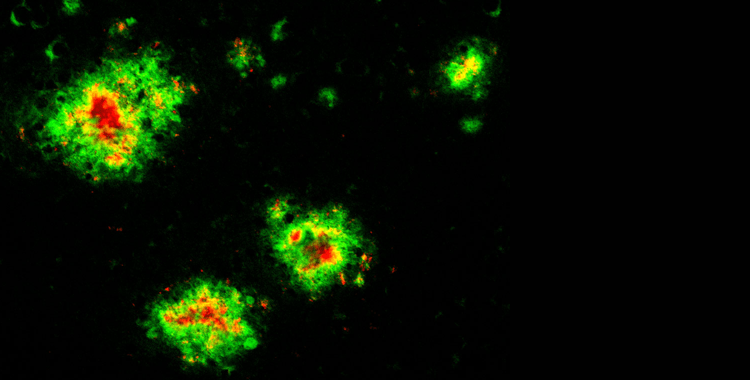 Sweet Dreams or Amyloid Nightmares by Knowing Neurons