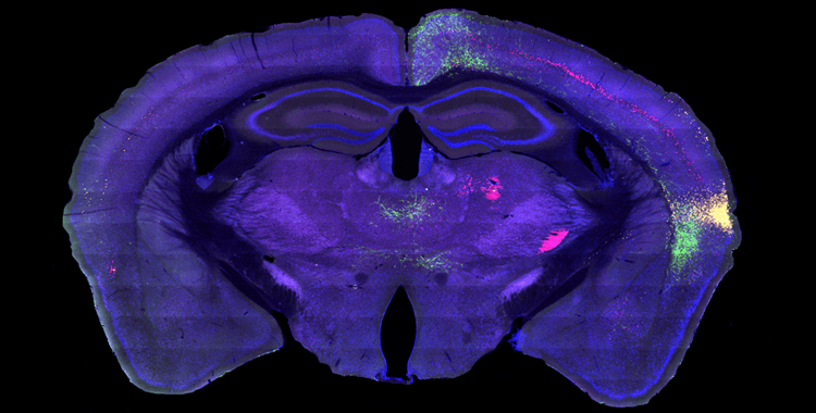 Mapping the Information Highway in the Brain Knowing Neurons