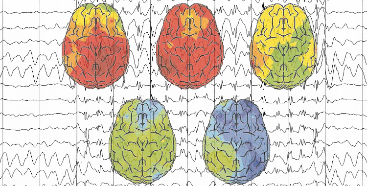 EEG_750