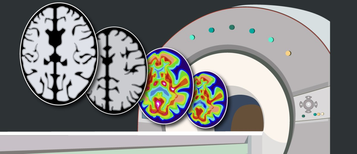 PET Imaging: The Real Positronic Brain?