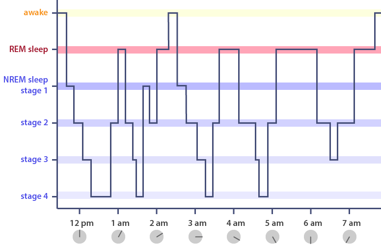 Hypnogram showing stages of cycles of sleep throughout the night. Illustration by Michal Roessler and adapted from Scholarpedia.