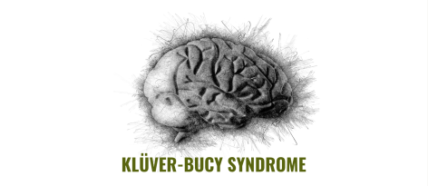 Image of a brain with the words Kluver-Bucy Syndrome underneath it. Illustrated by Rajamani Selvam.