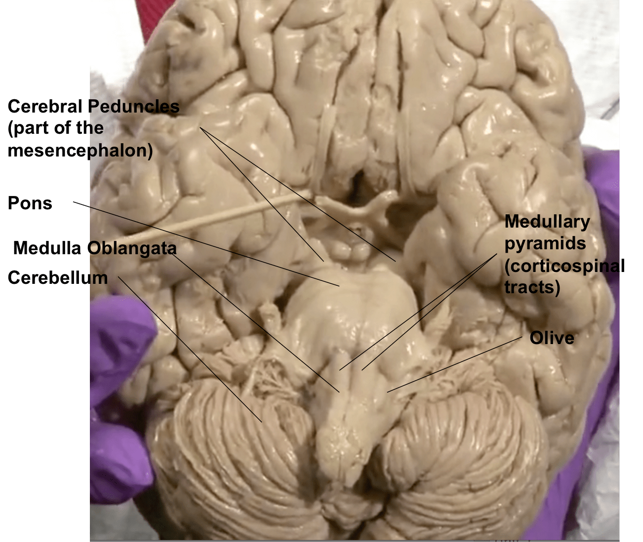 Concepts In Medical Neuroscience