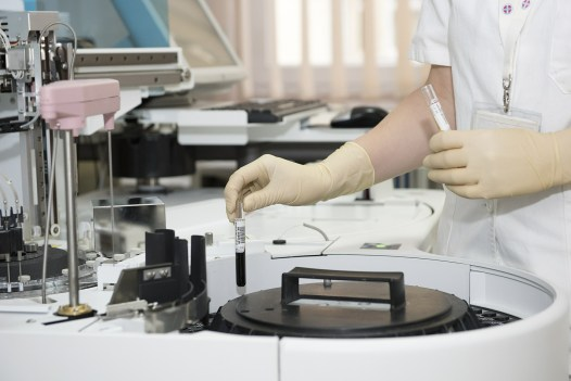 Lab tests and results
