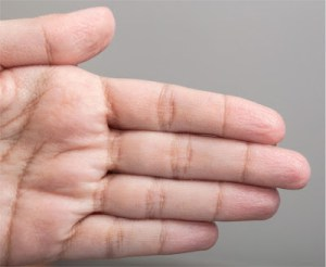 "Why Do Fingers and Toes ""Prune Up"" After Being in Water?"