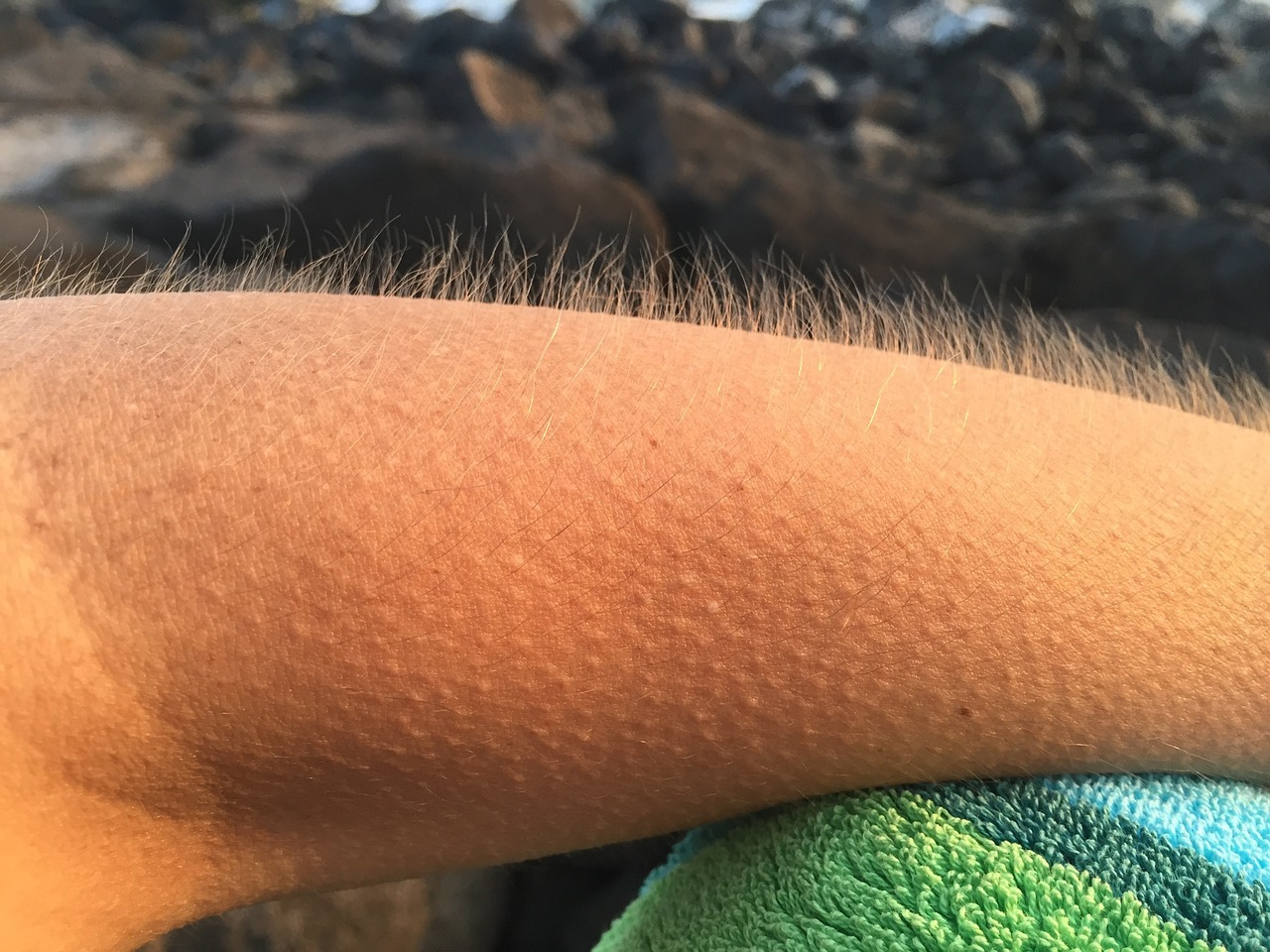 Goose Bumps: What Causes Them photo