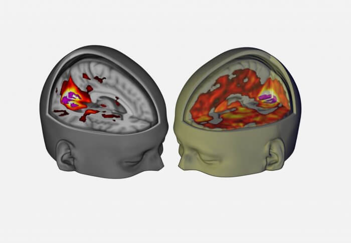 Brain scan of someone after they've taken LSD and someone who hasn't. The brain of the person that took the LSD shows a lot more activity than the one that hasn't