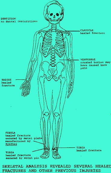 Autopsy visual report of unidentified female