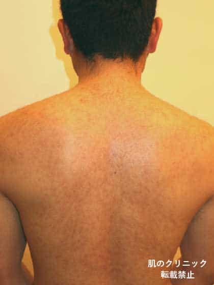 背中の重症ニキビ治療後
