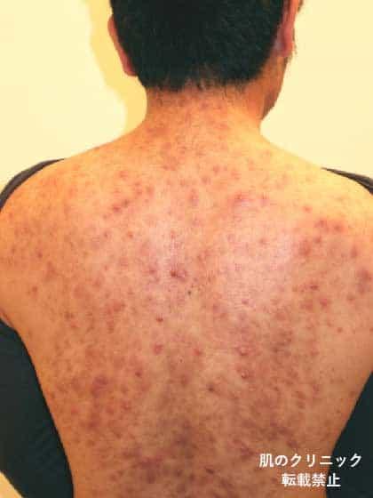 背中の重症ニキビ