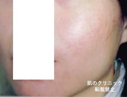 赤ら顔と赤ニキビ治療後