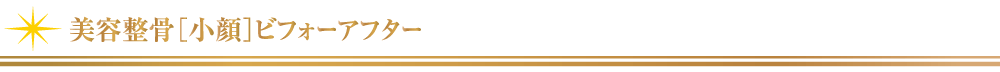美容整骨_小顔ビフォーアフター【東京・新宿・小顔矯正・骨盤矯正】WAXPERIENCE