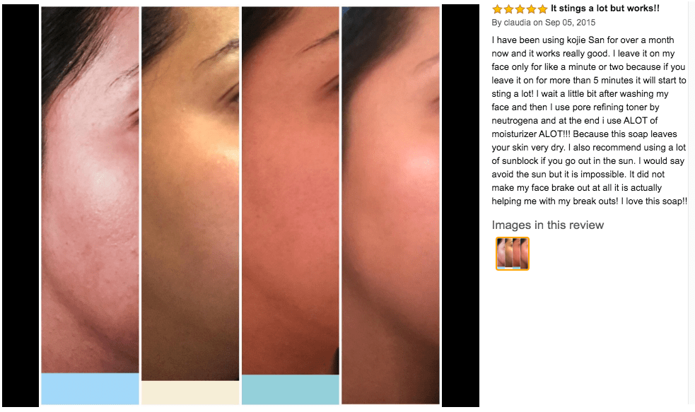 kojic acid soap before and after picture 5