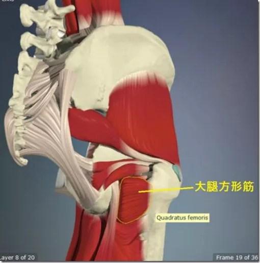 股関節痛み原因治療 大腿方形筋4.5