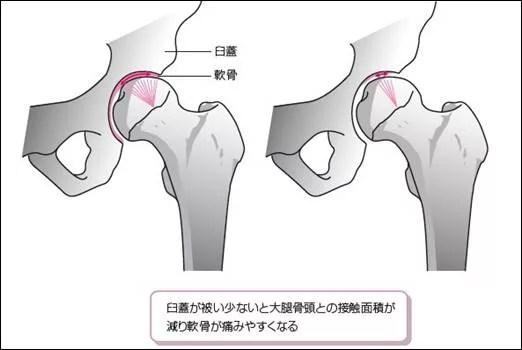 初期の臼蓋形成不全なら痛みや症状の改善は可能2