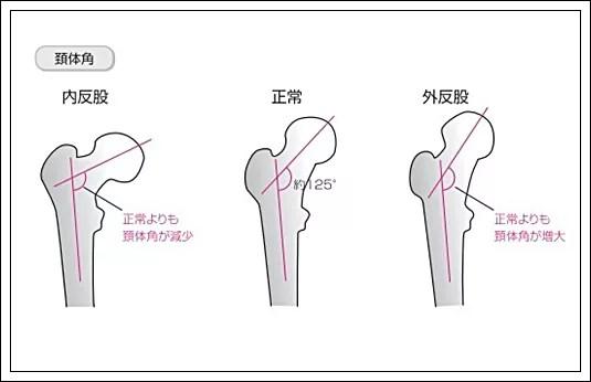 大腿骨の頚体角と前捻角とは?1