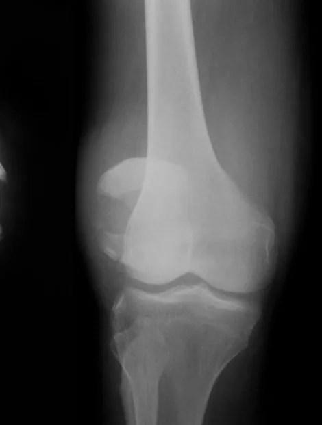 膝蓋骨脱臼骨折2
