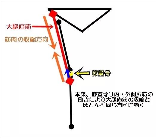 Q角膝蓋骨脱臼の仕組み