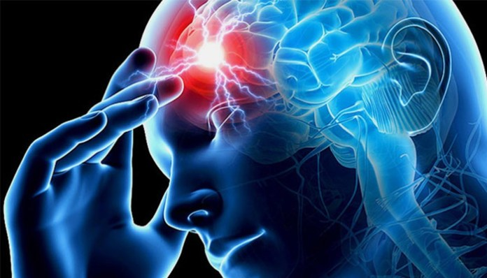 Health Tips: 5 Things You Can Do To Prevent Stroke 1