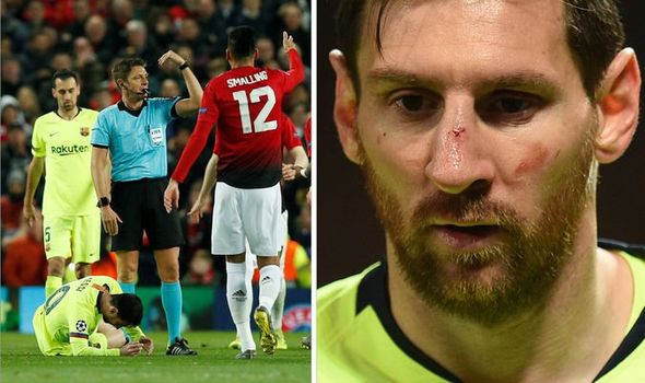 Lionel Messi's Nose Scan Comes Back Clear After Injury Against Manchester United 3