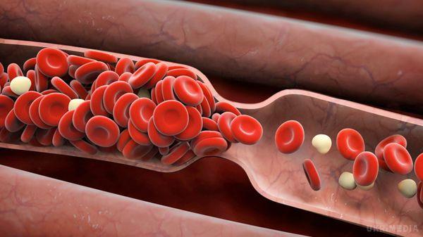 Щоб оздоровити організм зсередини: натуральні продукти, які розріджують кров