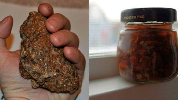 Єдиний продукт, який вбиває всі віруси, грибок і бактерії одночасно!