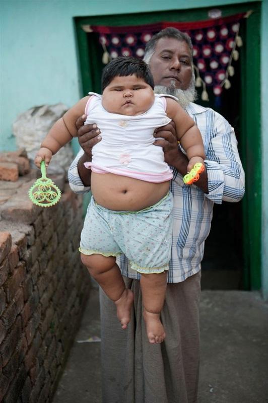 اضخم طفلة في العالم