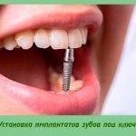 Установка имплантатов зубов под ключ
