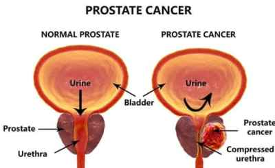 Prostate cancer images