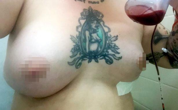 pay-dennie-lees-breast-implants_1013