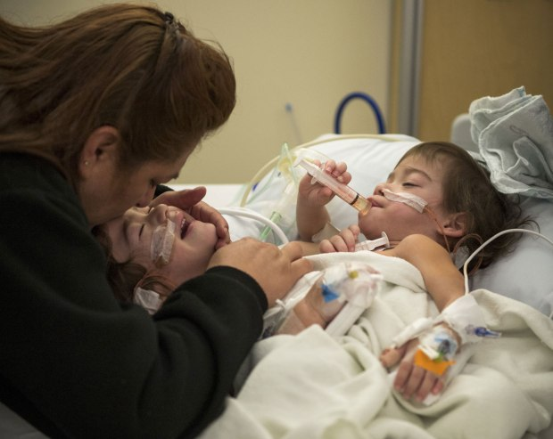 Aida Sandoval tries to soothe the twins after a surgery to insert balloon-like tissue expanders in their sides and back.jpg
