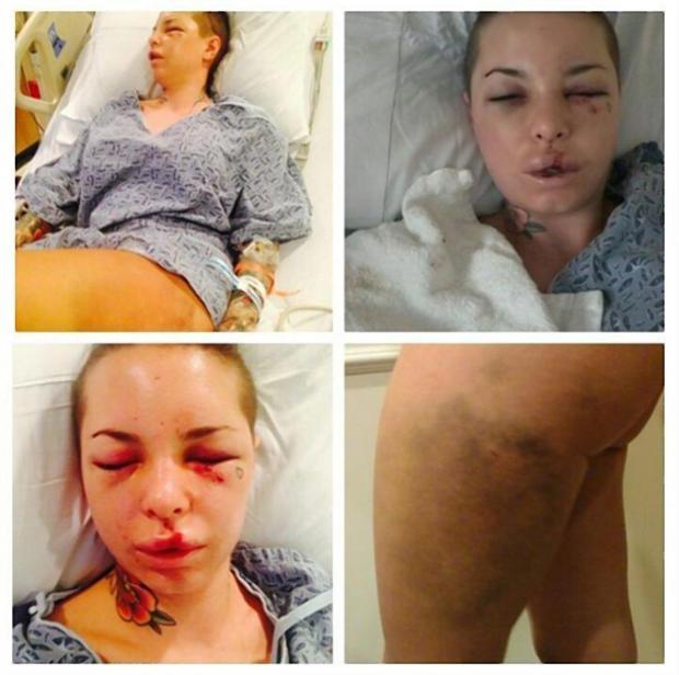 Christy Mack injuries2