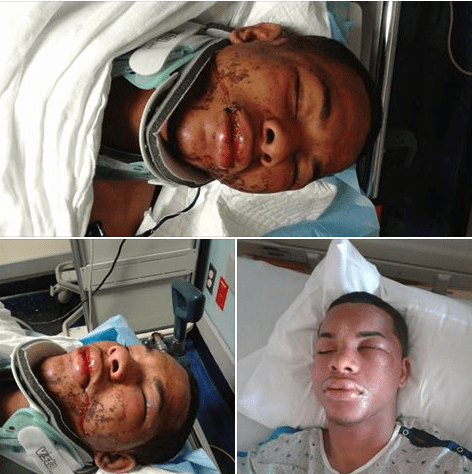 New Jersey Dad, Monte Stewart, claims son was 'savagely' beaten by police after car crash - The lead cop is mayor's brother