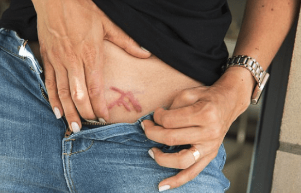 DOS slaves were branded on their pelvic with Keith Raniere's initials .png