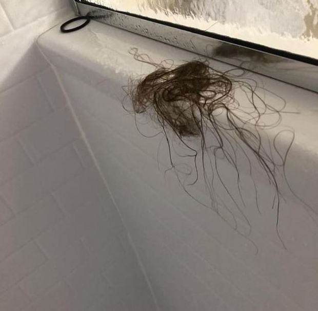 Melissa Gentz's hair was pulled out