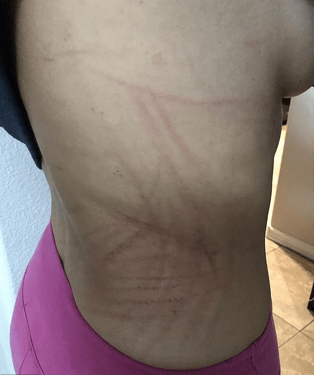 Larissa Dos Santos Lima shows lacerations on her body 2