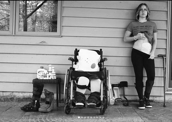 Erin shows her Cholostomy bag, wheel chair and body brace