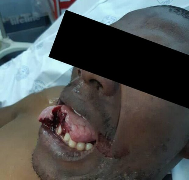 Female doctor bites off 'sex attacker's' TONGUE as he 'tries to rape her while she slept in South Africa 2