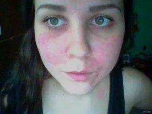 Красные пятна на лице, шелушатся и чешутся - Медицина ...