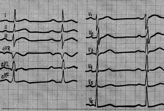 ekg pokytis esant hipertenzijai kraujagyslių hipertenzija yra draudžiama