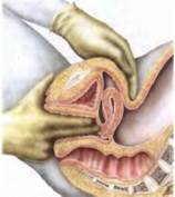 Осмотр гинекологическим зеркалом правильная подготовка и процедура обследования