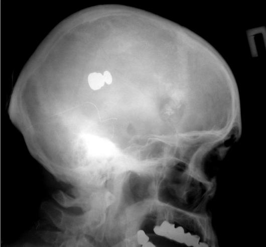 Переломы костей свода черепа