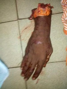"This person's hand went through ""Garri Process"""