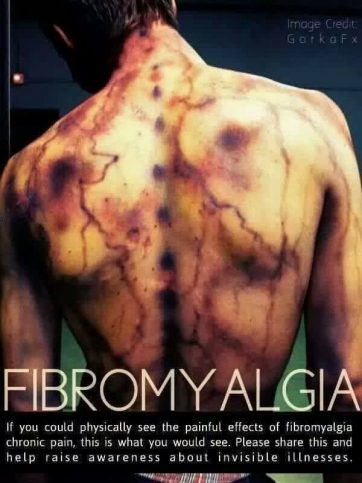 If you could physically see the painful effects of fibromyalgia chronic pain, this is what you would see (widespread bruising). Please share this and help raise awareness about invisible illnesses. Image credit: Gorka FX