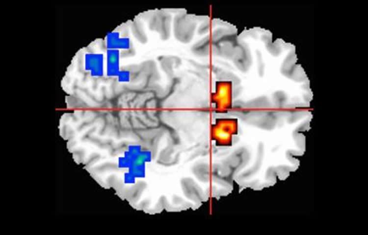 Žlutočervené oblasti ukazují aktivitu v kaudatech, oblasti mozku, jež bývá u psychotiku postižená. Obrázek pro Neuroscience.com poskytla King's College London.