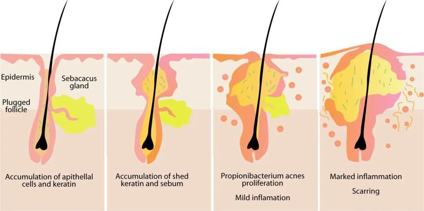 korean skincare products for oily acne prone skin how do bhas work salicylic acid