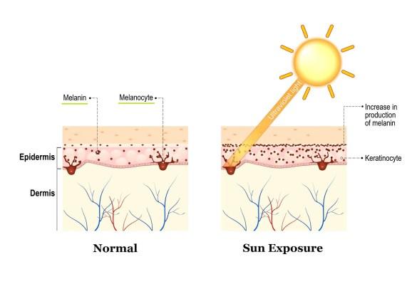 hyperpigmentation sun damage dark spots how it occurs melanin production vitamin c serums korean skincare